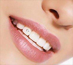 Как поставить зубной имплант - ada81