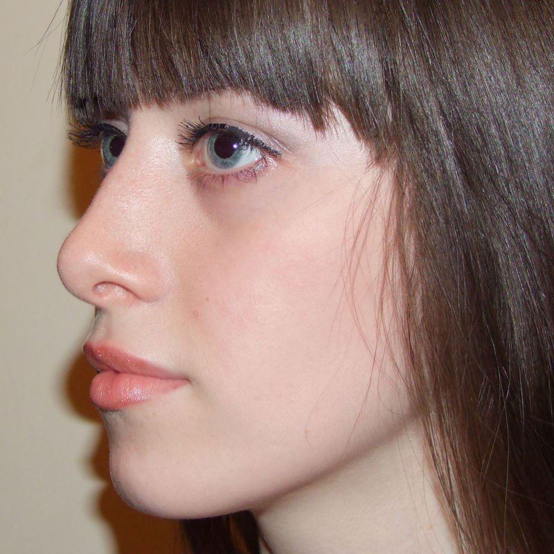 хочу армянский нос рино фото она зацвела, поздала
