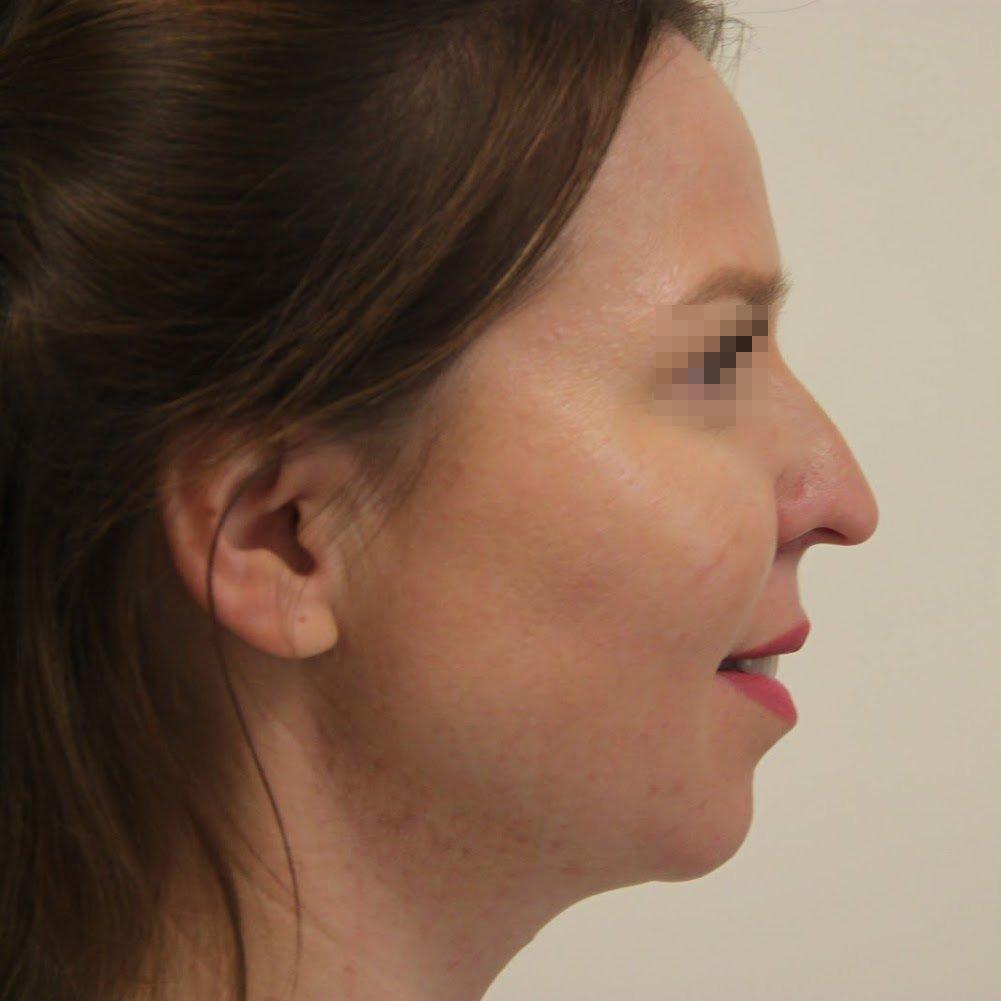 Сперма нос фото, порно зрелой дамы