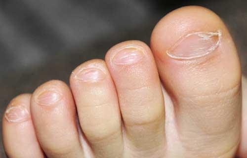 У ребенка слоятся ногти на ногах
