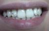 post-10205-0-33137100-1337546910_thumb.png