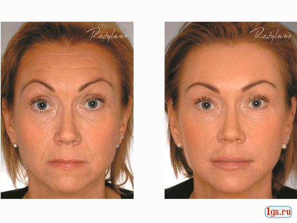 Мезотерапия век отзывы фото до и после
