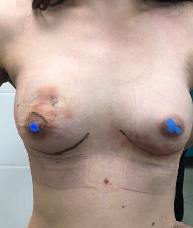 Сутки после операции (разрез в подмышечных впадинах, фиброаденому удаляли через разрез по краю ареолы).jpeg