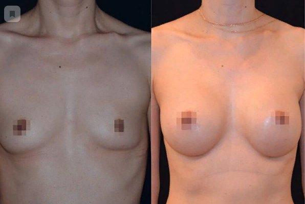 Увеличение груди 1 месяц после оп.jpg